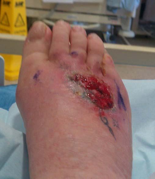 Татуировка на ноге у Сьюзен Фрейзер (6)